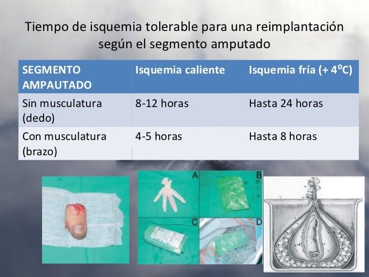 FRACTURA DE ESCAFOIDESTratamientoA) Ortopédico: fx estables no desplazadas, que suelen incluir:    – Fracturas del tubércu...
