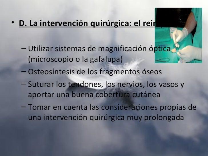 Síndrome CompartimentalConjunto de signos y síntomas secundarios al aumento de la presión en unacelda fascial de un miembr...