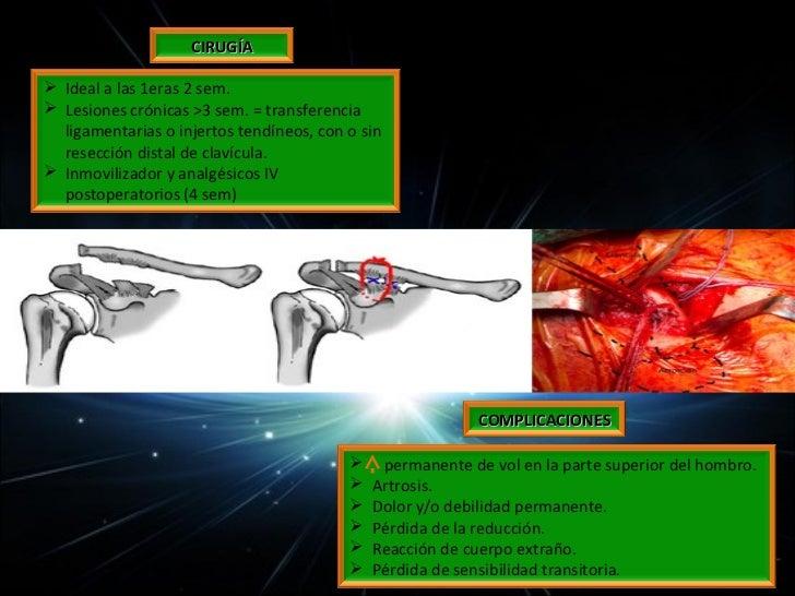 Cabeza o superficie articular (proximal al cuello anatómico)Tuberosidad mayor o troquiter (sitio de inserción del mangui...