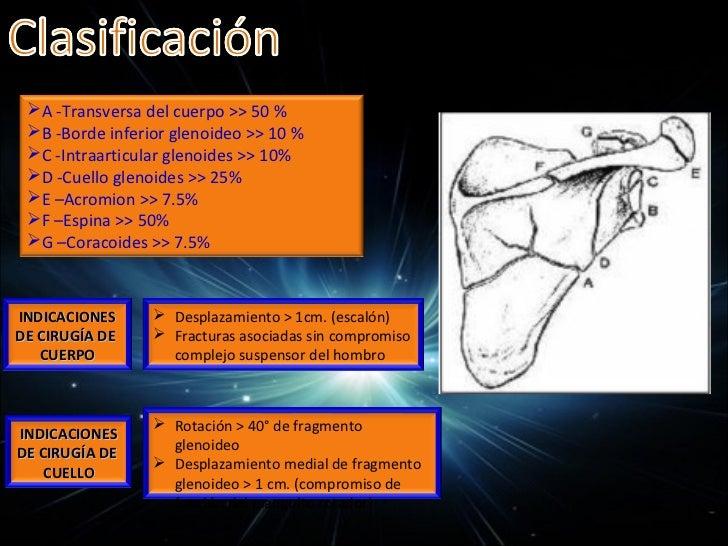 Tratamiento ortopédico Fracturas desplazadas: reducción bajo anestesia general.Tracción   Aducción        Reducción y rel...