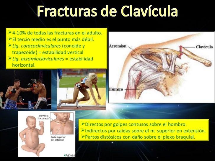 CLASIFICACIÓN DE FRACTURAS DE 1/3 EXTERNOGrado I                          Mínimo desplazamientoGrado II                   ...