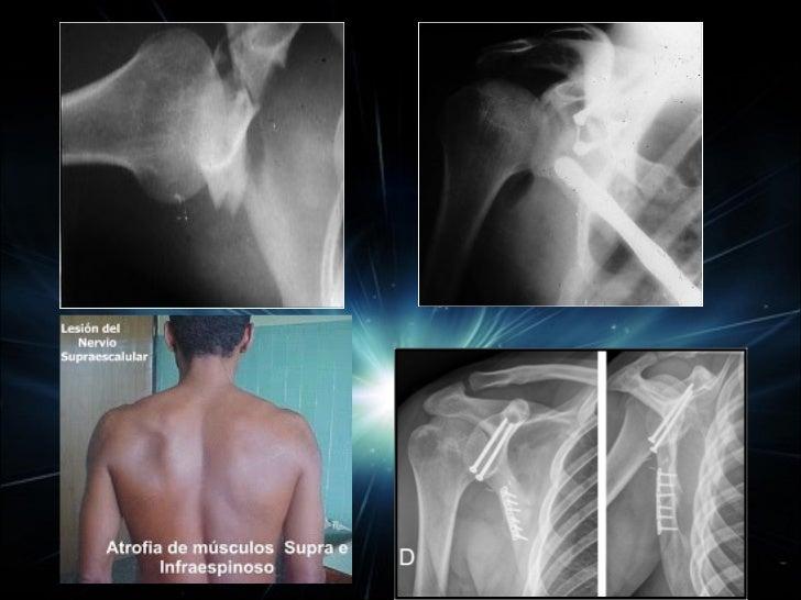 Instalación para la osteosíntesis del hombro o para enclavado del                             húmero .
