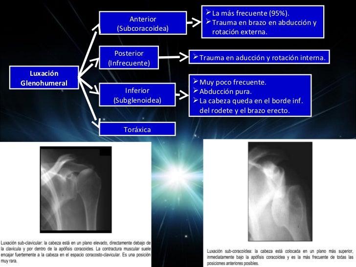 COMPLICACIONES Necrosis avascular (4 fragmentos y fracturas-  luxaciones). Rx = colapso de la cabeza humeral. Falta de c...