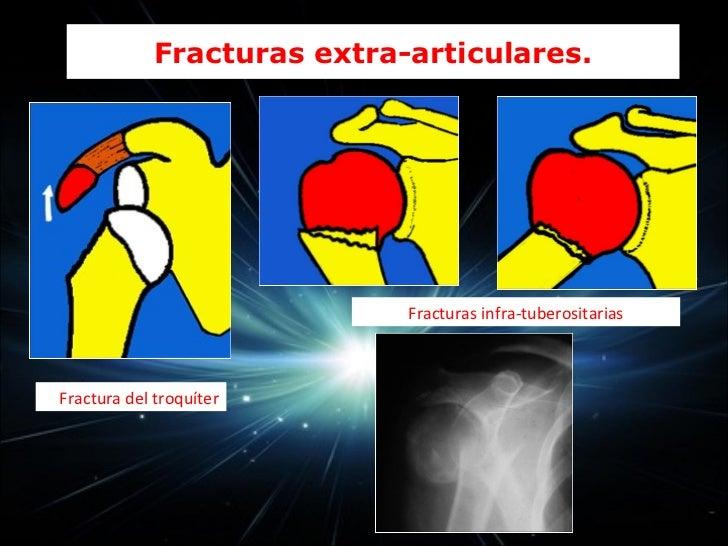  Articulación radiohumeral (radiocapitelar)       Codo            Articulación cubito humeral (cubito troclear)         ...
