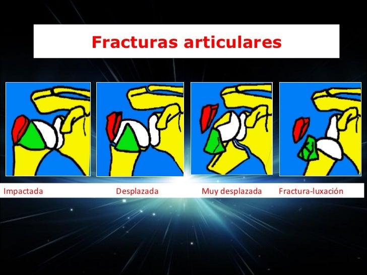 CLÍNICA Y EXPLORACIÓN FISICA (EF)                                                             FRACTURAS ASOCIADAS Dolor i...