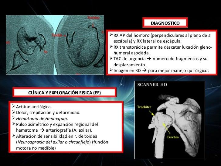 20-30% de las fracturas del codo.          Traumas indirectos por caídas sobre la mano                                  ...