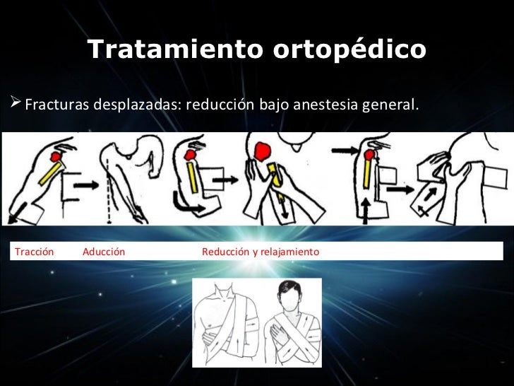  Trauma indirecto por contracción brusca de m. braquial                    ant = fractura por avulsión.                  ...