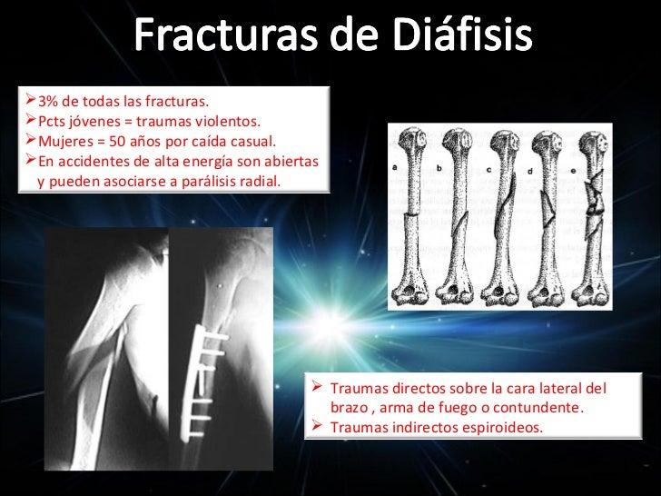 CLÍNICA, EXPLORACIÓN FÍSICA                    Y DIAGNÓSTICO                           INDICACIONES QUIRÚRGICAS      Defo...