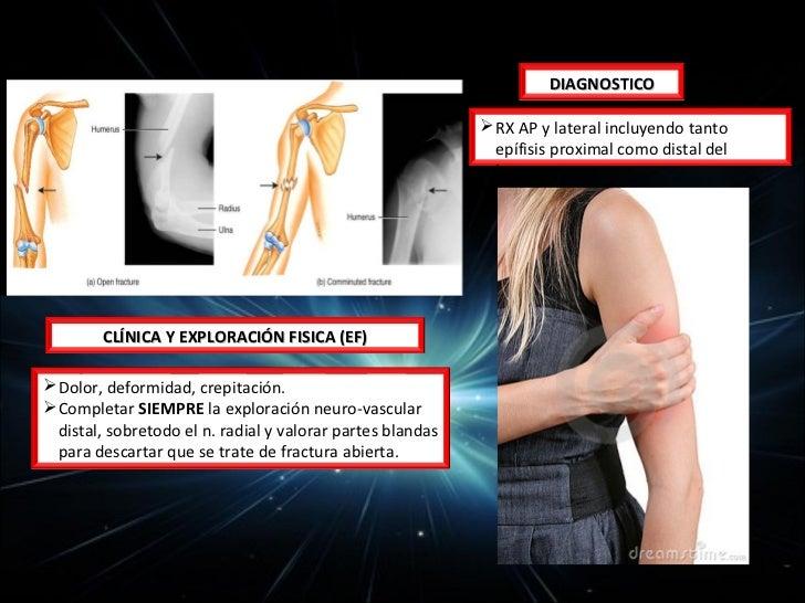 INTRODUCCIÓN• Un tercio de los accidentes laborales• 15 al 20% de todas las lesiones corporales• Responsables del 5-10% de...