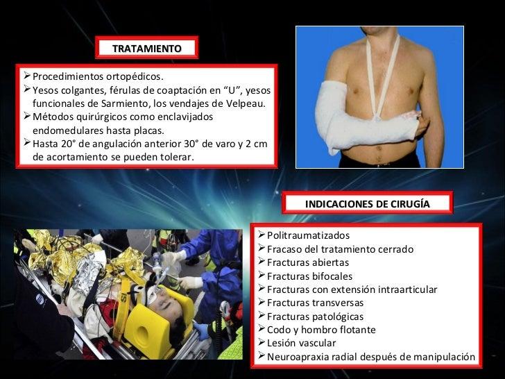 Enfoque de Trauma de mano• 1.- HISTORIA CLÍNICA GENERAL•   Edad•   Ocupación/Ocio•   Mano Dominante•   Antecedentes médico...