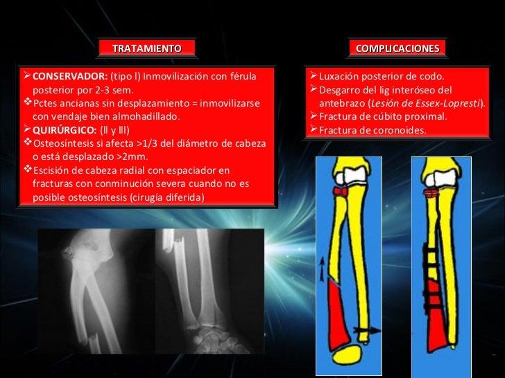 Movilidad: Lesión nerviosa              NERVIO MEDIANOPor encima del codo:   • Ausencia pronación.   • Debilidad flexión d...