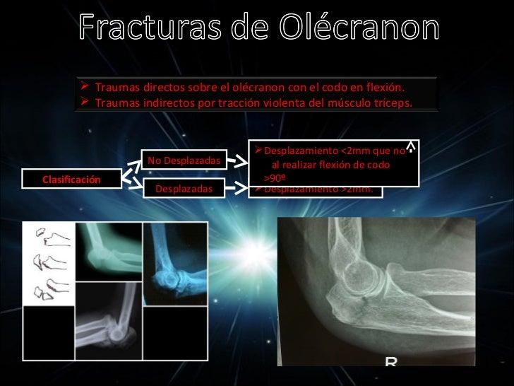 Movilidad: Lesión nerviosa  SIGNO DE     NERVIO CUBITAL  FROMENT                La lesión de este nervio ocasiona:        ...