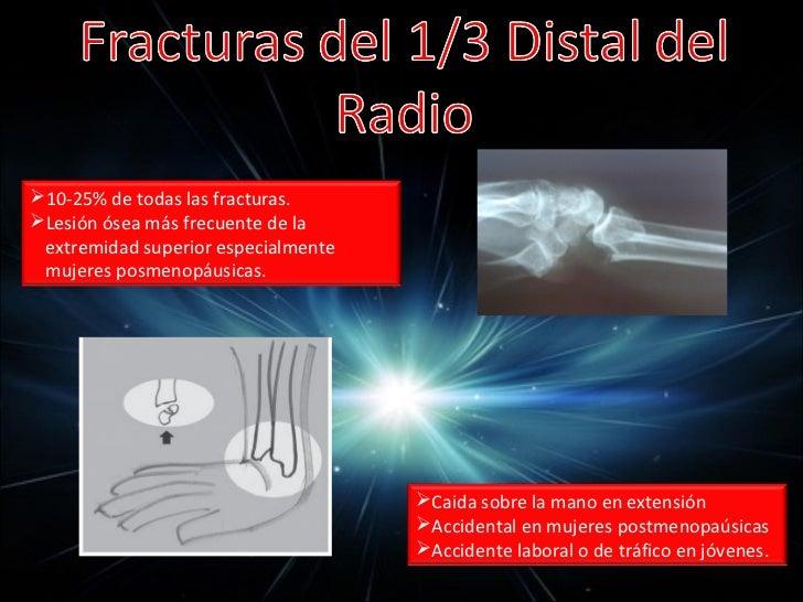 Pérdidas extensas de tejidos de           la mano• Avulsión digital provocada por anillo  4 GRADOS:  a) Contusión y equimo...