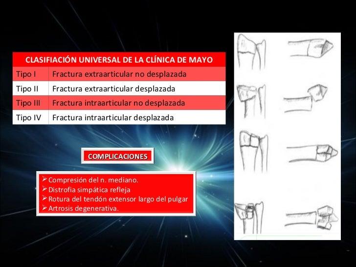 Pérdidas extensas de tejidos de la mano• Avulsión del pulgar: esquí acuático y  accidentes laborales  a)Avulsión incomplet...