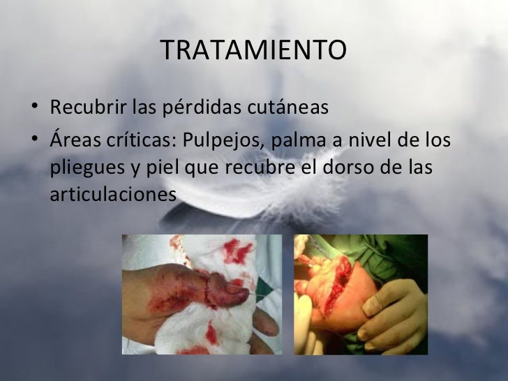 FRACTURA DE ESCAFOIDESClasificación de HerbertA: Estables.• A1: fracturas del tubérculo• A2: fracturas no desplazadas del ...