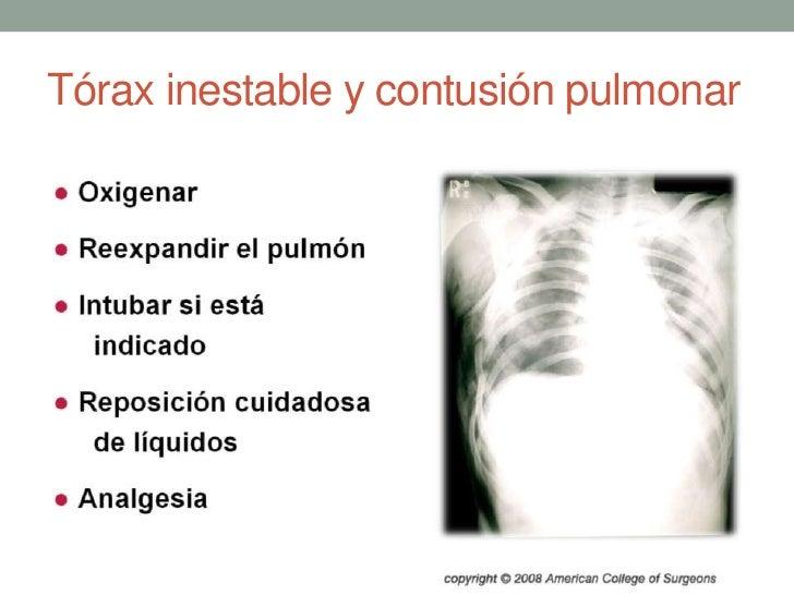 Tórax inestable y contusión pulmonar