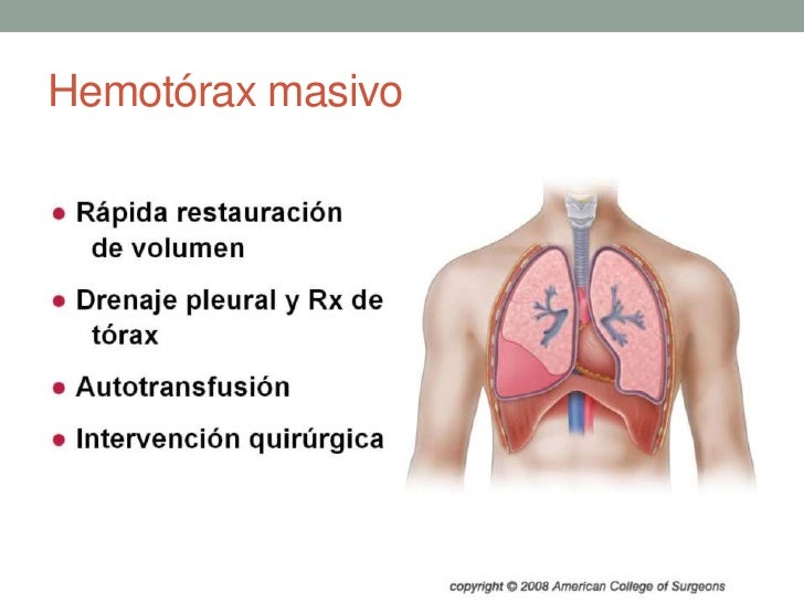 Hemotórax masivo