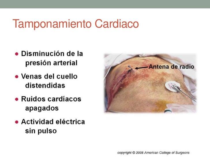 Tamponamiento Cardiaco