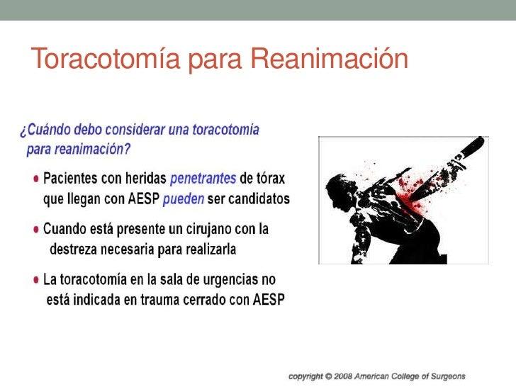 Toracotomía para Reanimación