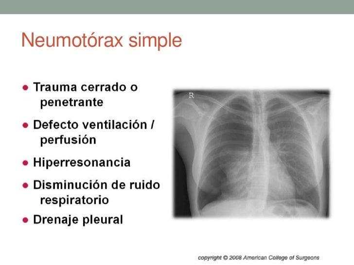 Neumotórax simple