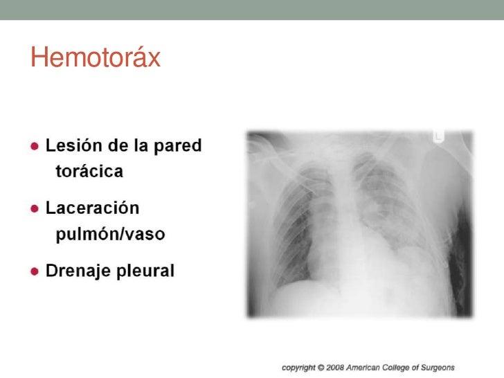 Hemotoráx