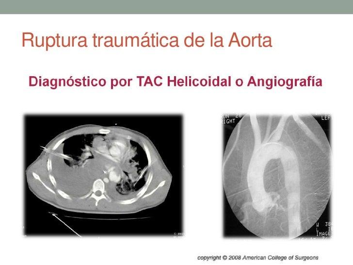 Ruptura traumática de la Aorta