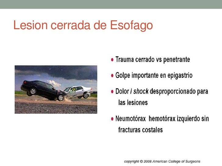 Lesion cerrada de Esofago