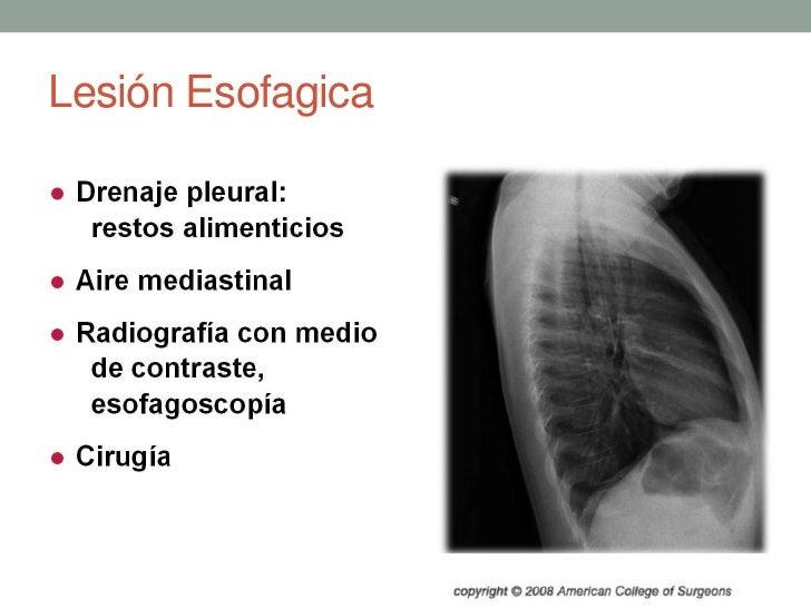 Lesión Esofagica