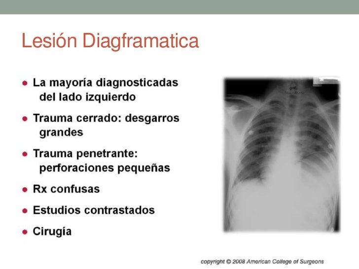 Lesión Diagframatica