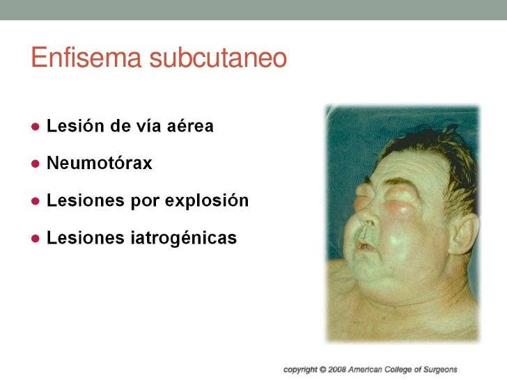 Enfisema subcutaneo