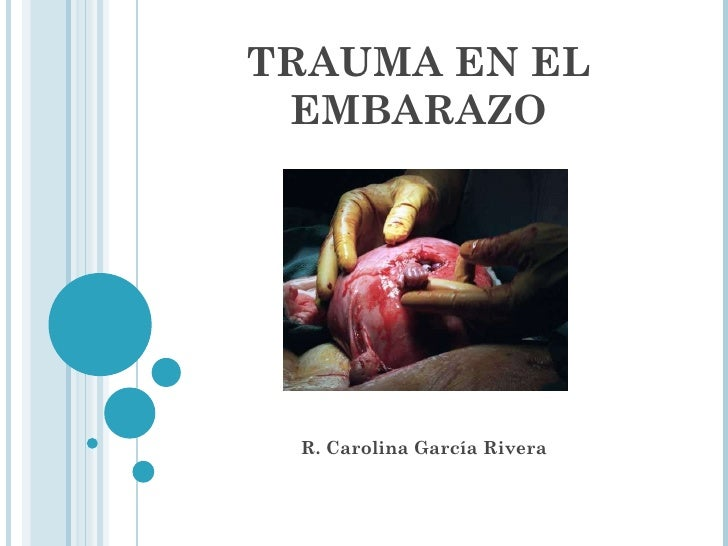 TRAUMA EN EL EMBARAZO R. Carolina García Rivera