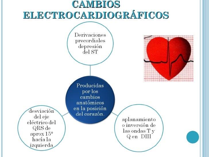 CAMBIOS ELECTROCARDIOGRÁFICOS