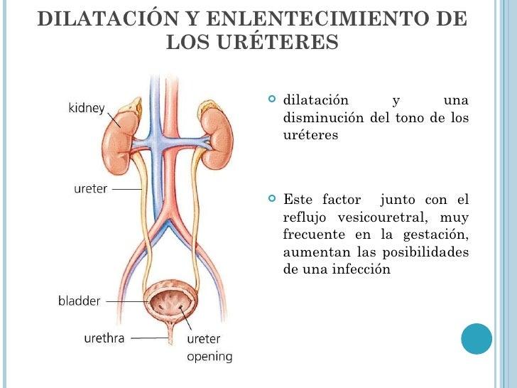 DILATACIÓN Y ENLENTECIMIENTO DE LOS URÉTERES <ul><li>dilatación y una disminución del tono de los uréteres </li></ul><ul><...