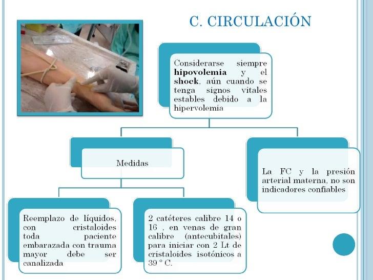 C. CIRCULACIÓN