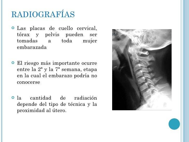RADIOGRAFÍAS <ul><li>Las placas de cuello cervical, tórax y pelvis pueden ser tomadas a toda mujer embarazada </li></ul><u...