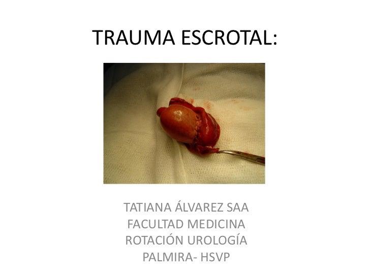 TRAUMA ESCROTAL:  TATIANA ÁLVAREZ SAA   FACULTAD MEDICINA  ROTACIÓN UROLOGÍA     PALMIRA- HSVP