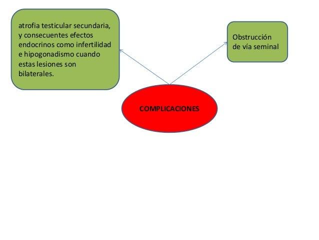 COMPLICACIONES atrofia testicular secundaria, y consecuentes efectos endocrinos como infertilidad e hipogonadismo cuando e...
