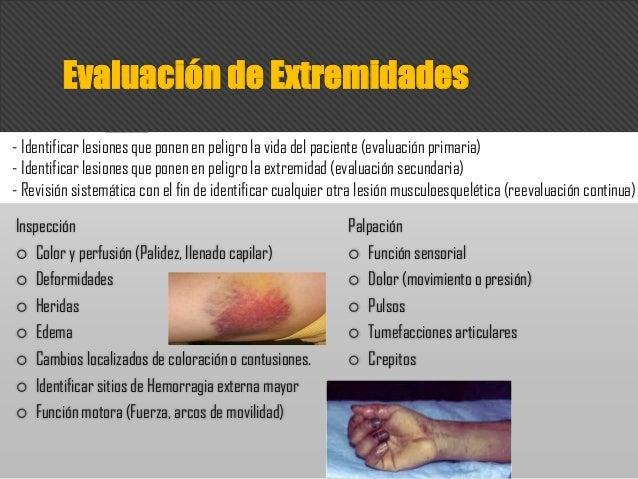 Inspección  Color y perfusión (Palidez, llenado capilar)  Deformidades  Heridas  Edema  Cambios localizados de colora...