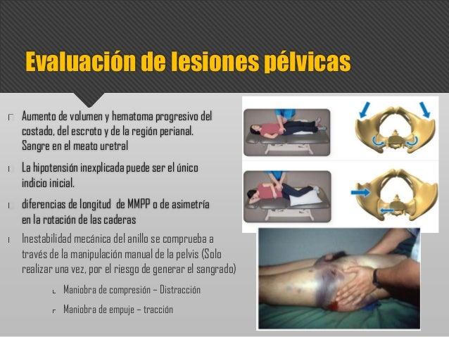 Aumento de volumen y hematoma progresivo del costado, del escroto y de la región perianal. Sangre en el meato uretral La h...