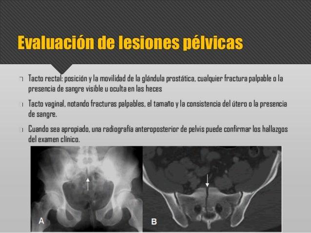 Tacto rectal: posición y la movilidad de la glándula prostática, cualquier fractura palpable o la presencia de sangre visi...