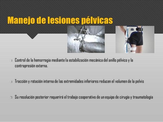 Control de la hemorragia mediante la estabilización mecánica del anillo pélvico y la contrapresión externa. Tracción y rot...