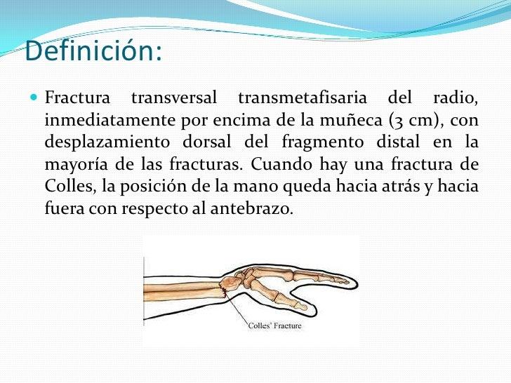 FRACTURA DE POUTEAU COLLES Slide 2