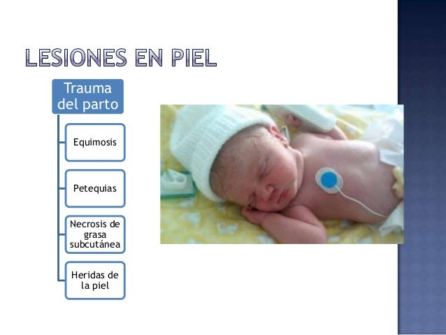 """EQUIMOSIS Partos pélvicos y traumáticos Causan anemia y shock """"reabsorción"""" Hiperbilirru- binemia Tx: fototerapía"""