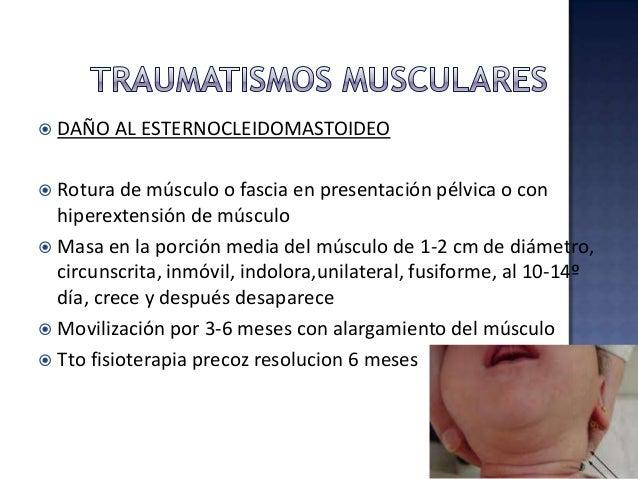 Frecuentemente ocasiona hemorragia subclínica, la masiva es poco común UNILATERALES 90% Trauma al nacimiento, macrosómico,...