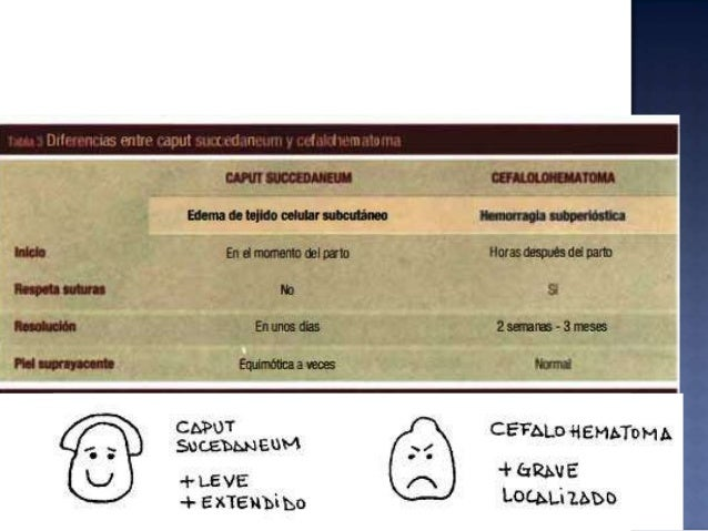  1. Piel y tejido subcutáneo: edema, petequias, equimosis, laceraciones y hematomas  2. Neurológicas: parálisis facial, ...