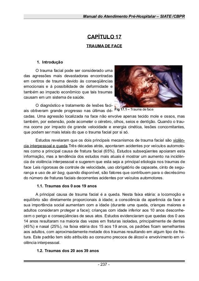 Manual do Atendimento Pré-Hospitalar – SIATE /CBPR CAPÍTULO 17 TRAUMA DE FACE 1. Introdução O trauma facial pode ser consi...
