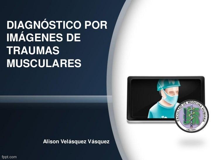 DIAGNÓSTICO PORIMÁGENES DETRAUMASMUSCULARES     Alison Velásquez Vásquez