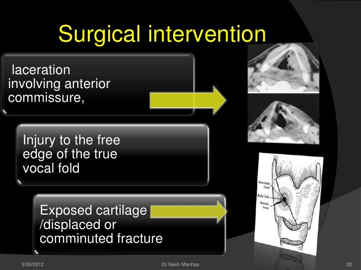 Surgical intervention lacerationinvolving anteriorcommissure,  Injury to the free  edge of the true  vocal fold         Ex...