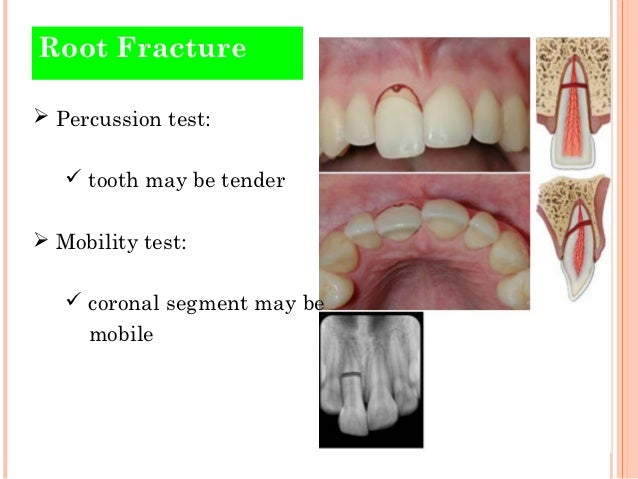 traumatic injuries of teeth. Black Bedroom Furniture Sets. Home Design Ideas