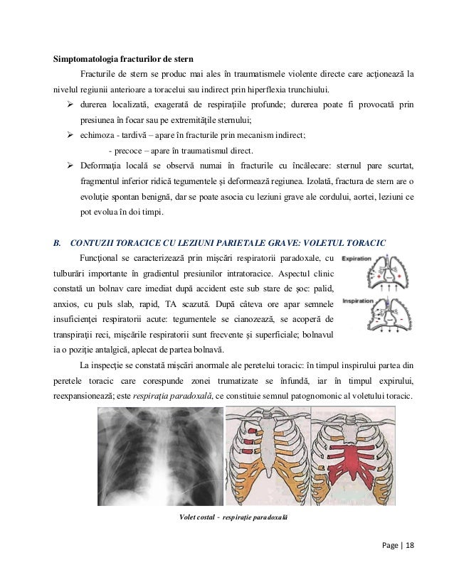 Page | 18 Simptomatologia fracturilor de stern Fracturile de stern se produc mai ales în traumatismele violente directe ca...